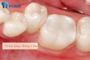 4 cách trị nhức răng cấm NHANH BẤT NGỜ không quá 15 phút 2