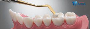 Kỹ thuật hàn răng bằng composite với 6 ưu điểm màu giống răng thật 1