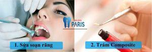 Kỹ thuật hàn răng bằng composite với 6 ưu điểm màu giống răng thật 2