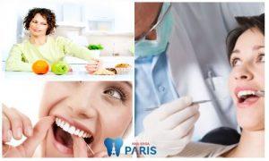 Kỹ thuật hàn răng bằng composite với 6 ưu điểm màu giống răng thật 3