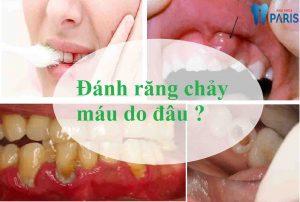 Chuyên gia CẢNH BÁO: Đánh răng chảy máu mất răng như chơi 1