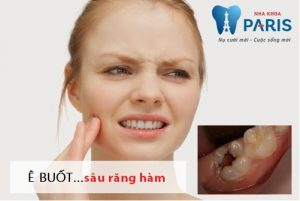 Sâu răng hàm – Nguyên nhân & Cách điều trị không lo tái phát
