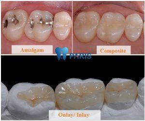 Vật liệu trám răng & công nghệ phát huy ưu điểm vật liệu 1