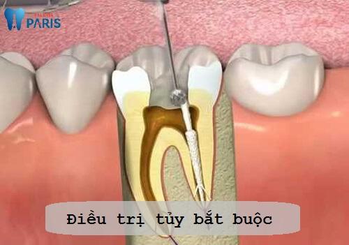 Viêm tủy răng có hồi phục được không? BS tư vấn cách điều trị 2