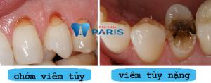 Viêm tủy răng có hồi phục được không? BS tư vấn cách điều trị 1