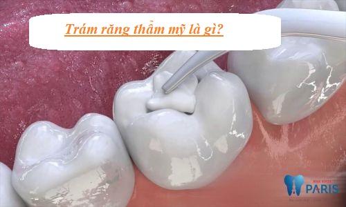 Trám răng thẩm mỹ là gì