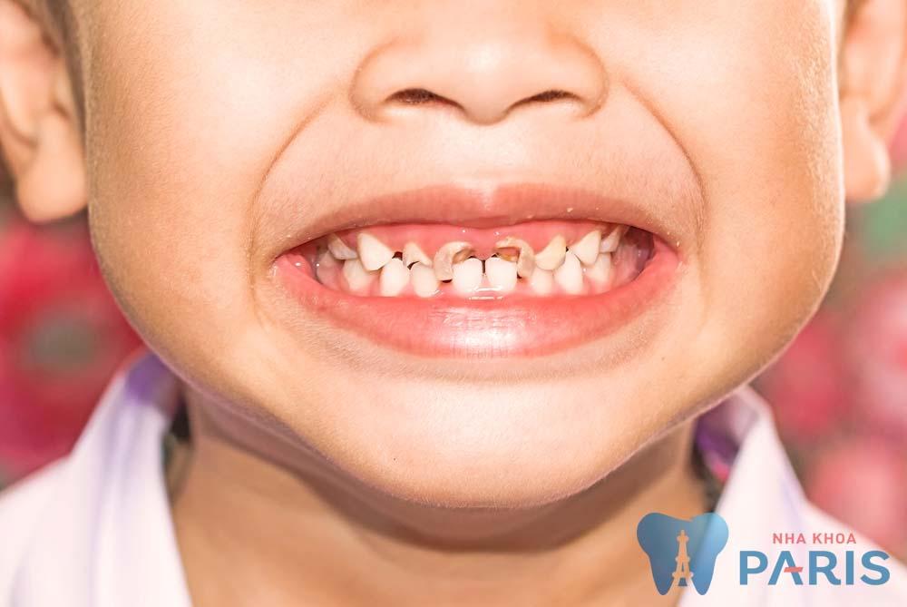 Nguyên nhân trẻ em bị sâu răng sữa & Cách điều trị AN TOÀN 100% 1