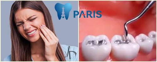 Nguyên nhân trám răng xong bị ê nhức