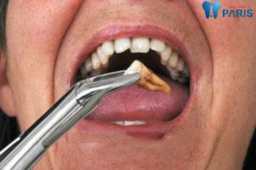 Nhức nhối sâu răng hàm - trọn bộ cách điều trị tận gốc