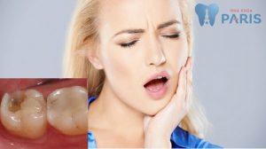 Đau nhức sau hàn trám trị sâu răng cấm: Nguyên nhân và cách điều trị 1