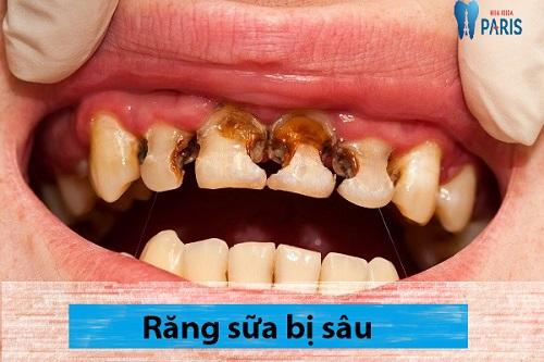 Tư vấn răng sữa bị sâu có nên hàn không từ chuyên gia