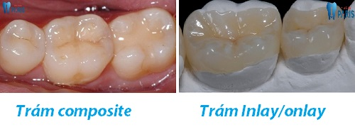 Lỗ sâu răng to có trám được không hay phải dùng biện pháp khác ?