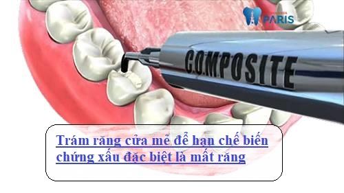 Trám răng cửa bị mẻ và những thông tin chia sẻ từ chuyên gia 2