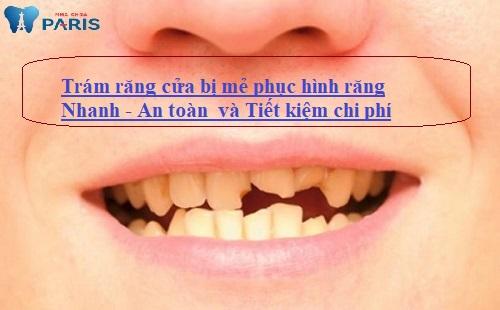Trám răng cửa bị mẻ và những thông tin chia sẻ từ chuyên gia 1