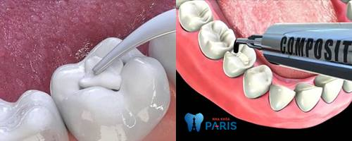 Trám răng thẩm mỹ có bền không? Cách Tăng tuổi thọ răng trám TỐT 4