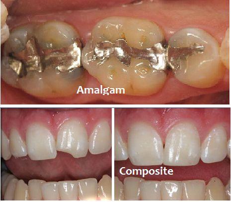 Trám răng thẩm mỹ có bền không? Cách Tăng tuổi thọ răng trám TỐT 5