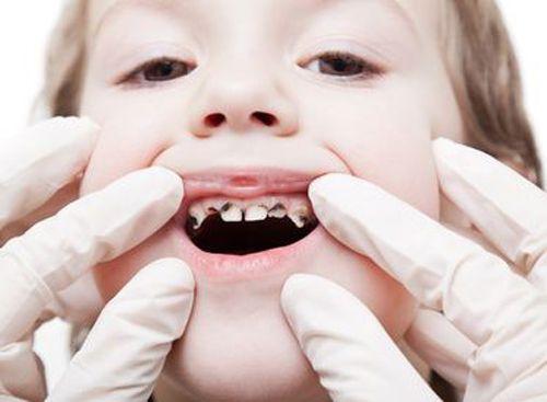 Sâu răng ở trẻ em - Nguyên nhân và cách điều trị trong từng giai đoạn 4