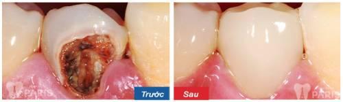 """""""Bật mí"""" 5 Cách chữa sâu răng hàm NHANH CHÓNG tại nhà An Toàn  9"""