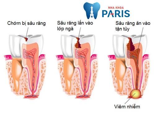"""""""Bật mí"""" 5 Cách chữa sâu răng hàm NHANH CHÓNG tại nhà An Toàn 1"""