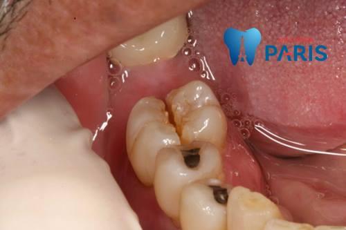 """""""Bật mí"""" 5 Cách chữa sâu răng hàm NHANH CHÓNG tại nhà An Toàn 2"""