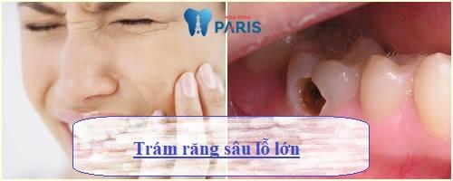 Thắc mắc: Trám răng sâu lỗ to có mang lại hiệu quả không? 1
