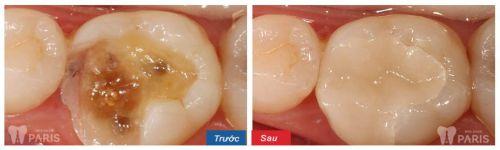 Thắc mắc: Trám răng sâu lỗ to có mang lại hiệu quả không? 4