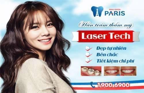 trám răng laser tech hỗ trợ độ bền cao nhất