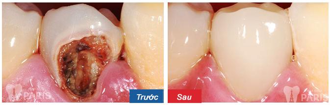 cách bắt con sâu răng
