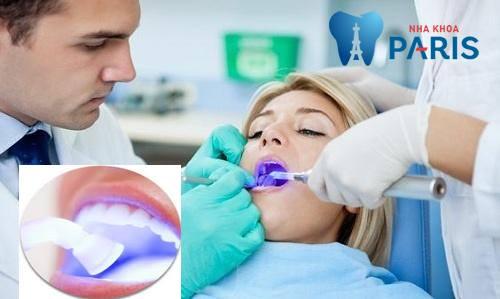Quy trình trám răng sâu đạt CHUẨN QUỐC TẾ gồm các bước sau!