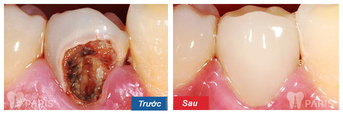 Dấu hiệu nhận biết sâu răng & cách chữa trị DỨT ĐIỂM ở từng thời kỳ 7