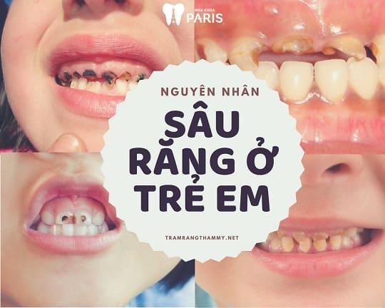Sâu răng ở trẻ em & những thông tin CẦN THIẾT Nhất cha mẹ Nên Biết 7