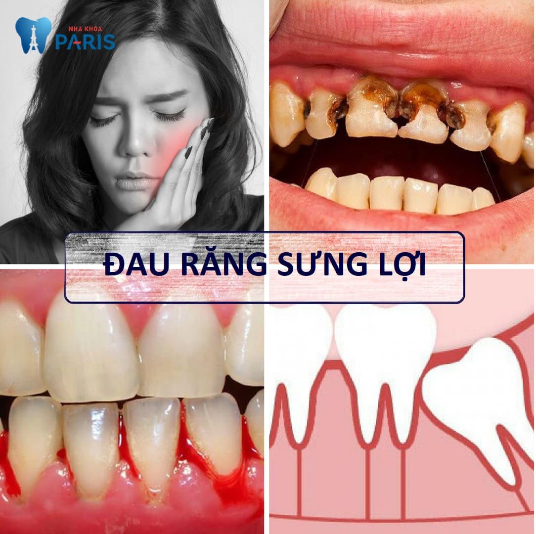 A-Z về đau răng sưng lợi, cách chữa trị TRIỆT ĐỂ là đây 1