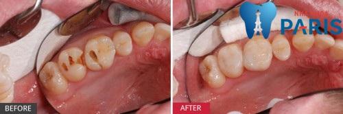 Răng bị sâu thì CÓ NÊN ĐI TRÁM KHÔNG? - Bác sĩ giải đáp 1