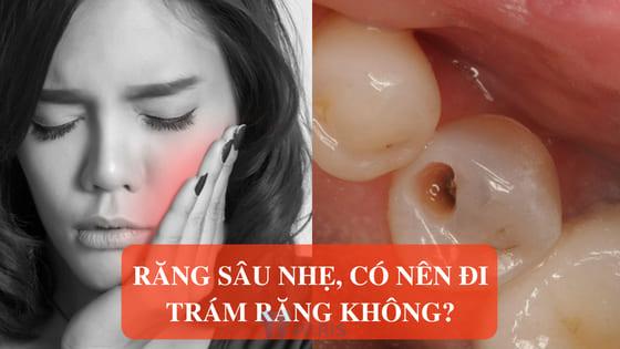 Răng bị sâu thì CÓ NÊN ĐI TRÁM KHÔNG? - Bác sĩ giải đáp 2