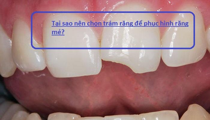 Tất tật Thông tìn từ A - Z về trám răng cửa bị mẻ bạn CẦN PHẢI BIẾT 1
