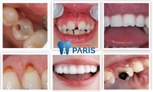 3 dấu hiệu cảnh báo hỏng men răng và cách điều trị triệt để nhất 1