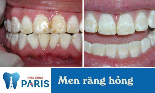 3 dấu hiệu cảnh báo hỏng men răng và cách điều trị triệt để nhất 2