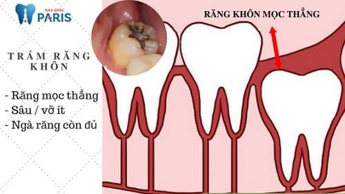 Trám răng khôn hay nhổ bỏ là cách tốt nhất khi bị sâu răng? 2