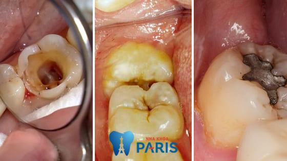 Trám răng khôn hay nhổ bỏ là cách tốt nhất khi bị sâu răng? 3