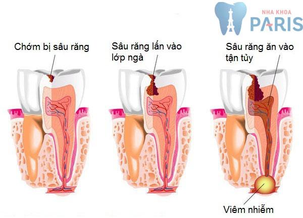 Sâu răng gây viêm tủy cấp nguy hiểm