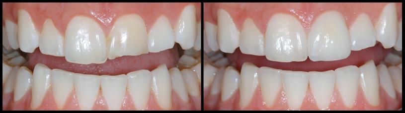 """Cách khắc phục răng bị mẻ """"Tiết Kiệm"""" đạt Hiệu Quả chỉ sau 30 phút 2"""