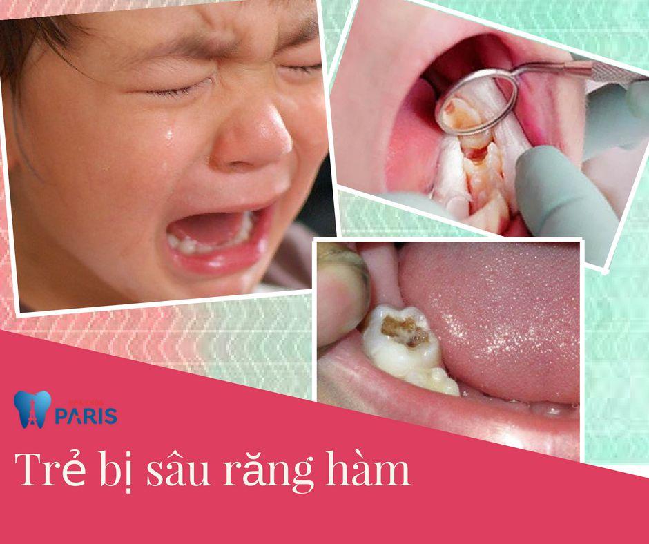Trẻ em bị sâu răng hàm phải làm sao? - Cách chữa trị AN TOÀN 100% 3