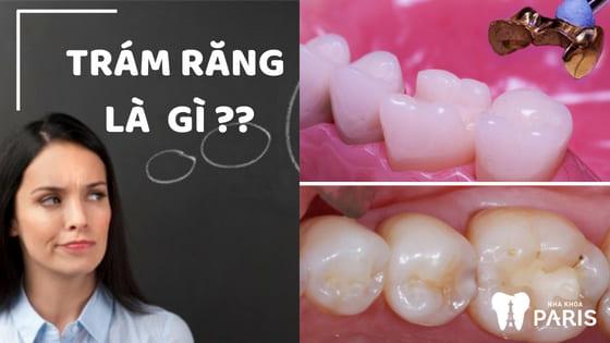 Trám răng là gì, có đau không? Bảng giá hàn trám răng MỚI 2018 1