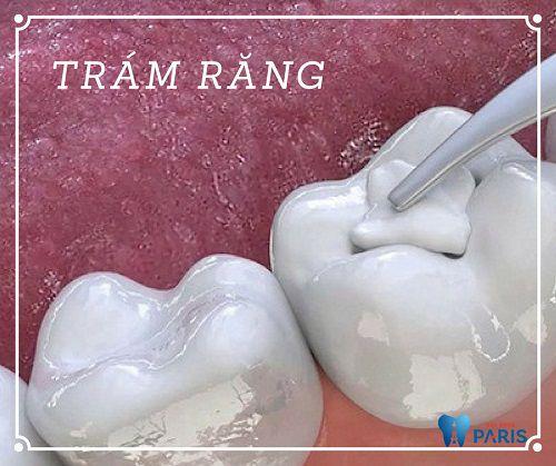Răng khôn bị sâu có trám được không hay bắt buộc phải nhổ bỏ? 2