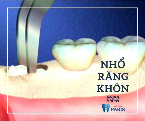 Răng khôn bị sâu có trám được không hay bắt buộc phải nhổ bỏ? 3