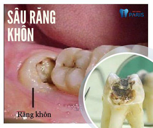 Răng khôn bị sâu có trám được không hay bắt buộc phải nhổ bỏ?
