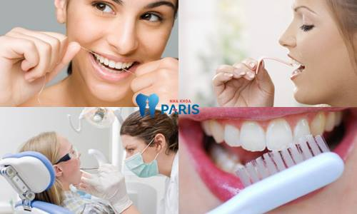 Hàn răng có ảnh hưởng gì không? Tác dụng thực sự của việc trám răng 4