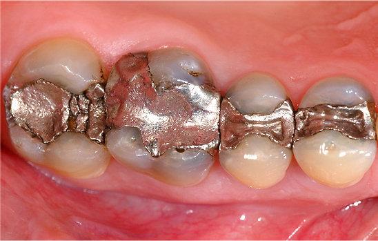 Hàn răng có ảnh hưởng gì không? Tác dụng thực sự của việc trám răng 1