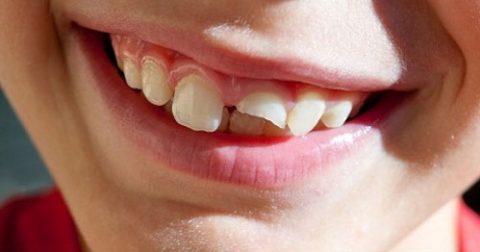 Bé bị mẻ răng sữa