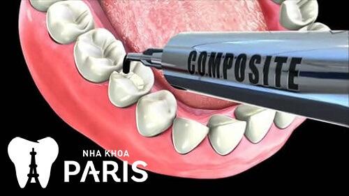 Nên trám răng ở đâu tốt? Nha khoa UY TÍN đã được biết đến từ lâu 3